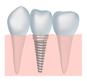 Close up of tooth implant available to patients near Montgomeryville, PA and North Penn.