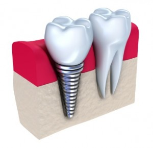 dental implants Lansdale